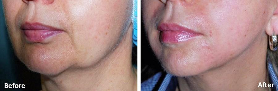 Underansigt før og efter behandling