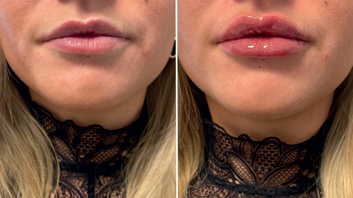 Restylane behandling af læber, før/efter