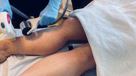 Permanent hårfjerning på ben