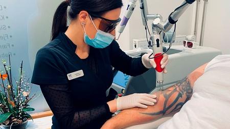 Behandler udfører tatoveringsfjernelse på arm