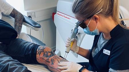 Behandler fjerner tatovering på ben