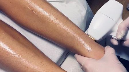 Permanent hårfjerning ben