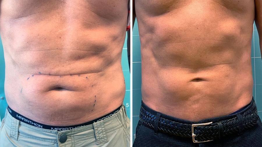 Maveregion før og efter behandling med fedtfrysning