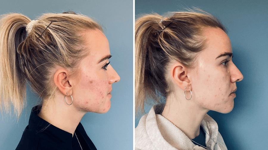 Akne ar før og efter behandling