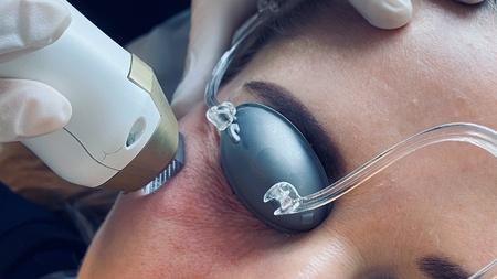 Laserbehandling kvindeansigt