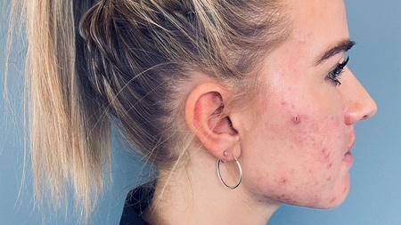 Kvindeansigt med akne hud