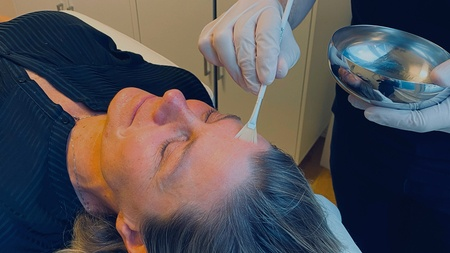 Peeling behandling af kvinde