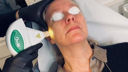 Laserbehandling ansigt