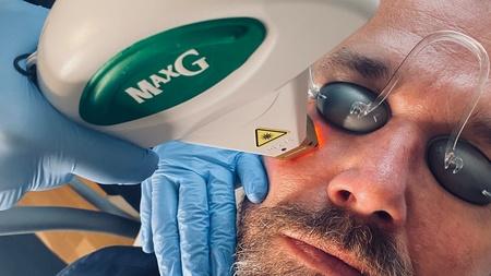 Laserbehandling mandeansigt