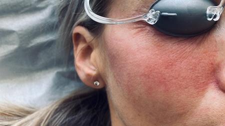 Rosacea hud i ansigt