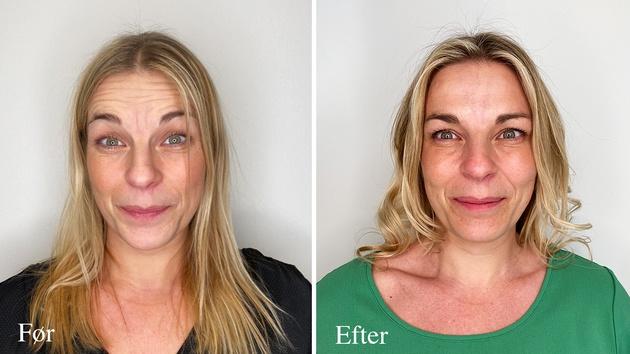 Kvindeansigt før og efter Botox behandling