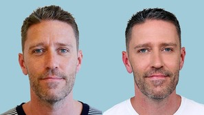 Mandeansigt før og efter rynkebehandling