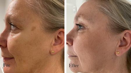 Kvindeansigt før og efter behandling af pigmentpletter